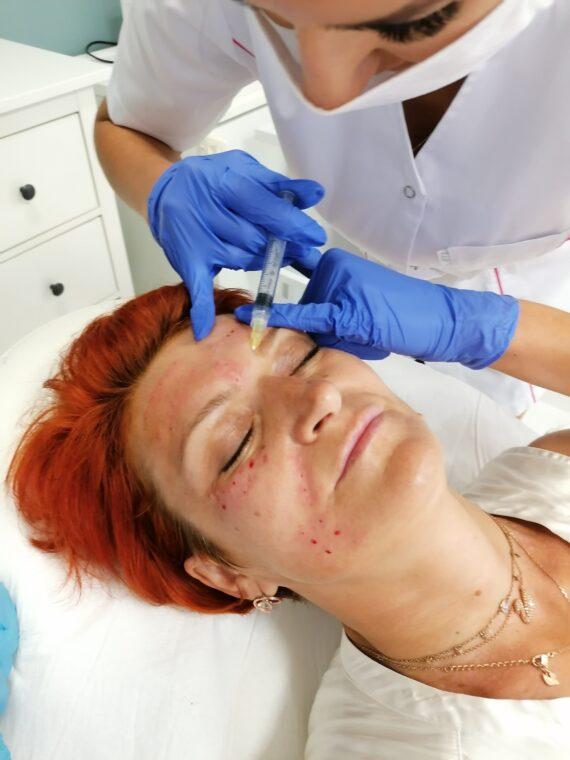 mezoterapia zabiegi na twarz Zielona Góra